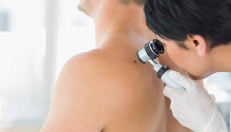 State-of-the-Art Melanoma Treatment Begins in Indiana